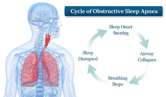 The cycle of Obstructive Sleep Apnea