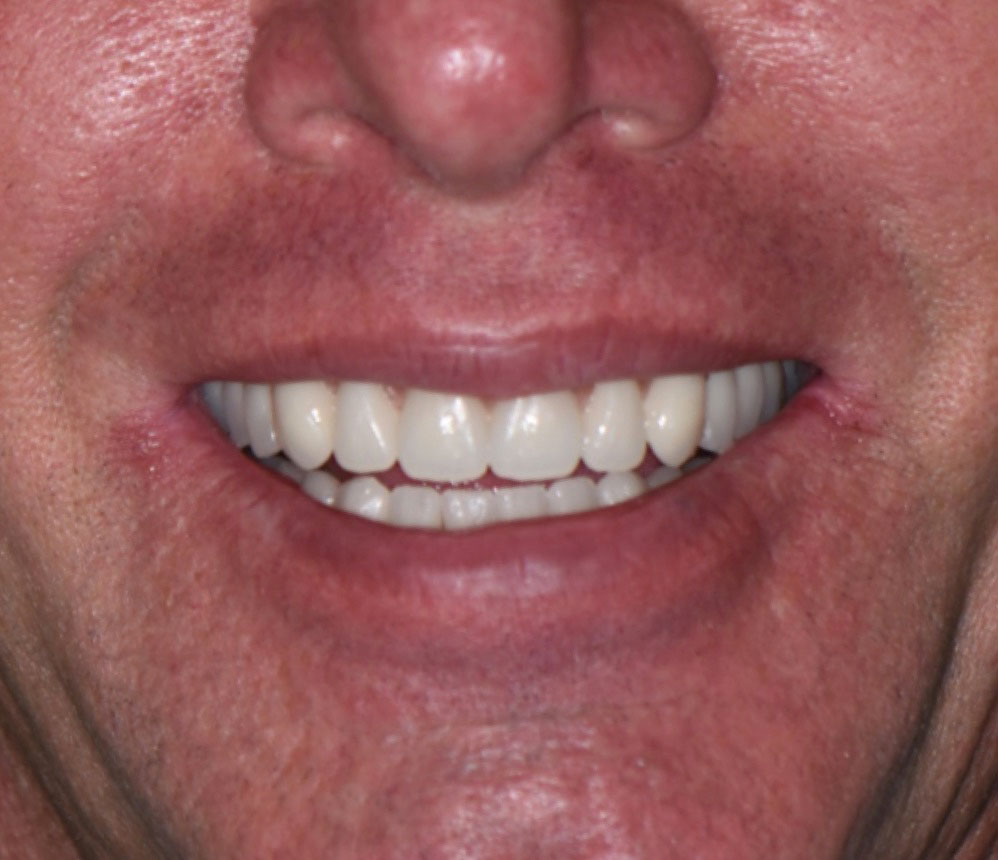 Dentures Procedure Results With Before After Photos Of Dentures
